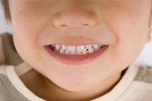 歯並びと矯正歯科